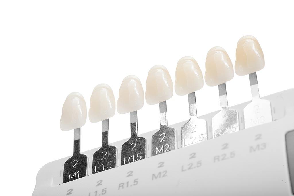 Blanqueamiento dental, Centro Odontológico Fabregues