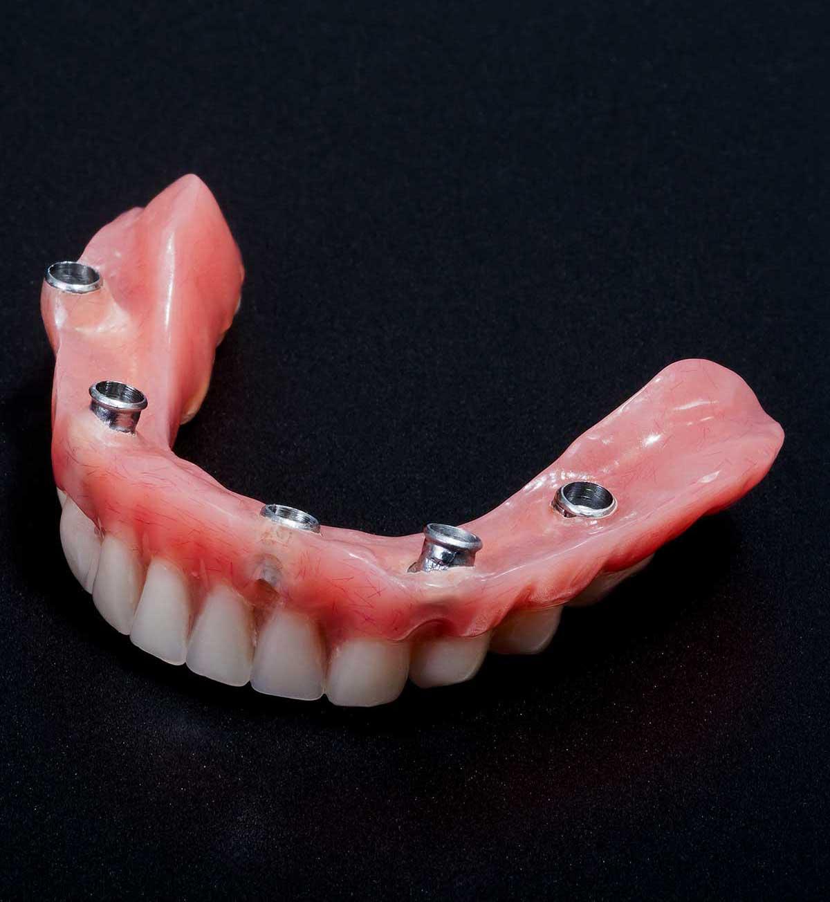 Implantes para desdentados