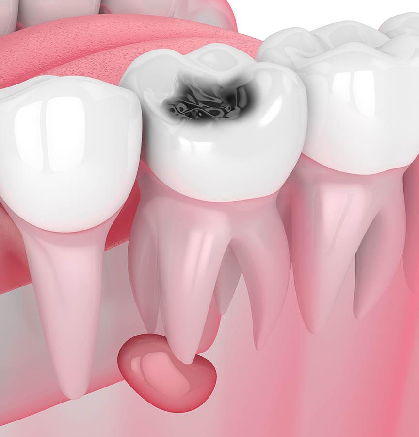 Salud dental - Apicectomía