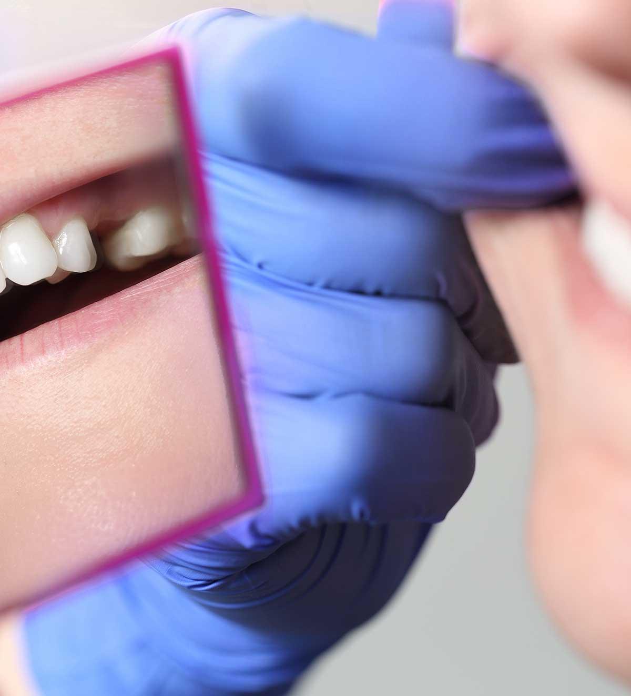 Salud dental - Extracciones